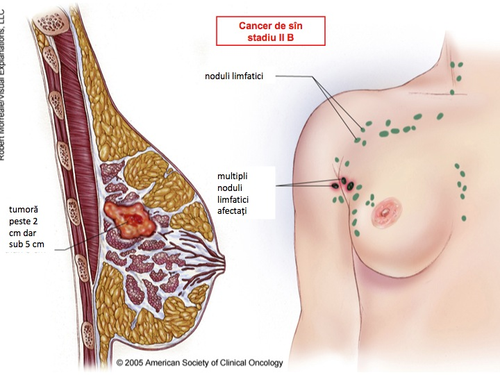 cancer mamar cu ganglioni